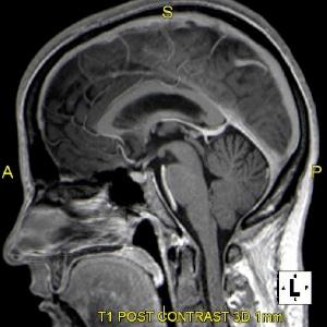 Severe Headache & Facial Paralysis: 3T MRI Brain | Portland