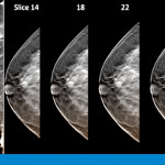 Modern Mammography