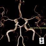 Severe Headache & Facial Paralysis: 3T MRI Brain