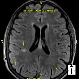 Dizziness and Balance Problems: 3T MRI Brain