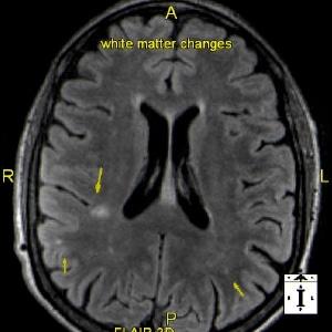 Brain2a