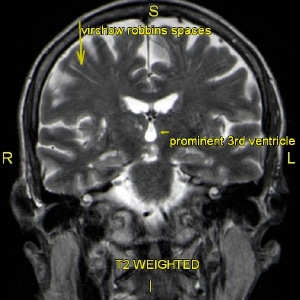 Brain2c