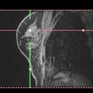 BreastMRI001a