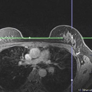 Assessing a Suspicious Breast Nodule: MRI, Ultrasound and Expert Radiologists