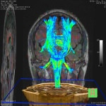 3D Demonstration: 3T MRI Brain With Diffusion Tensor Imaging