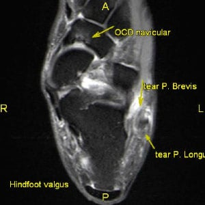Peroneus Longus and Peroneus Brevis Tendon Tears: 3T MRI Hindfoot