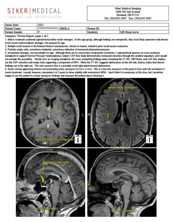 #T MRI picture report