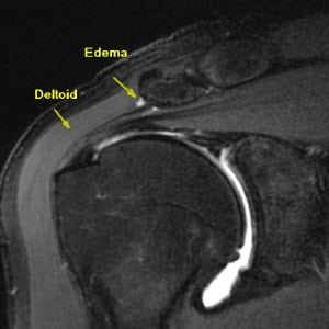 Shoulder Pain & Instability: 3T MRI Shoulder