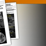 What Sets Siker Imaging Apart