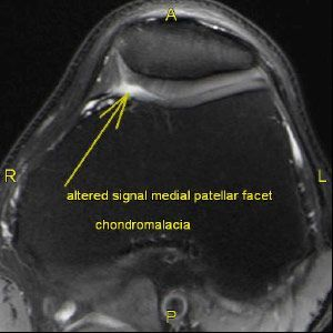 Petellar Tendon Tear: 3T MRI Knee