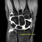 Wrist Ligament Tear: 3T MRI Wrist Arthrogram