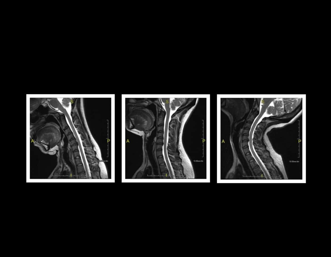 Dynamic (Animated) 3T MRI